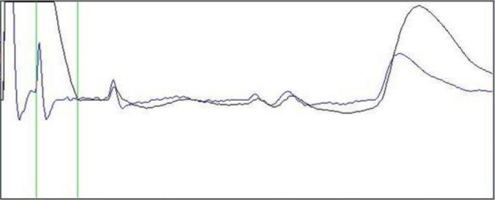 TDR-kurve-pulsbredder